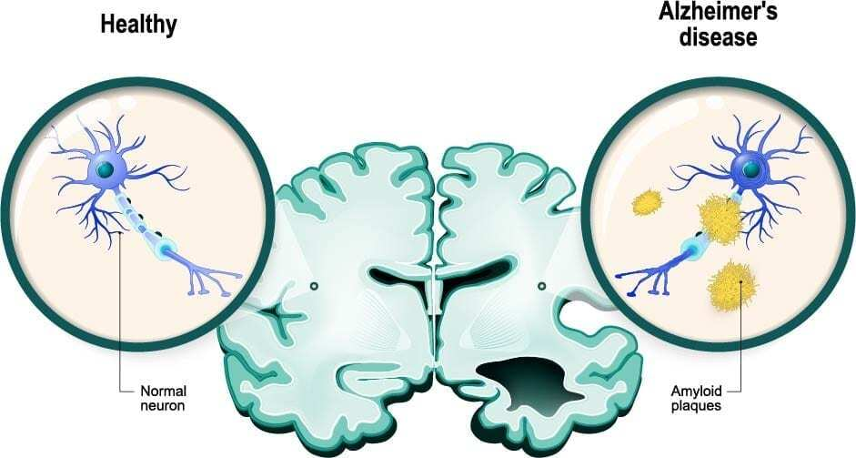 image of healthy brain and brain with dementia